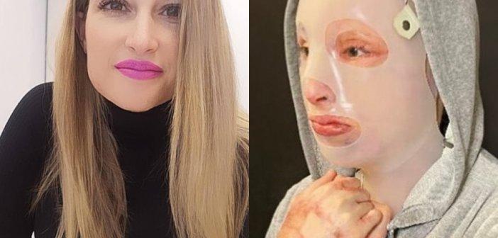 Επίθεση με βιτριόλι: Η φωτογραφία-σοκ που ανήρτησε η Ιωάννα Παλιοσπύρου (Προσοχή σκληρές εικόνες)